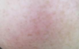 freckles 2